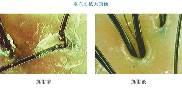 ペーアッシュの弱酸性ウェーブ剤と一般的なアルカリ性パーマ剤の比較